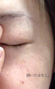 キス マットシフォンUVホワイトニングベースを塗った肌